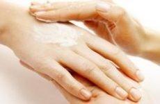 Екзема на пальцях рук: причини і лікування. Як і чим лікувати мокнучу екзему на руках і пальцях рук