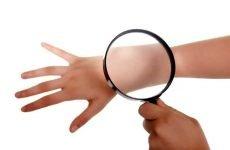 Загострення псоріазу: що робити, як швидко і результативно полегшити рецидив