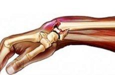 Консолідуючий перелом лучезапястной кістки: особливості та терміни консолідації