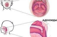 Аденоїди у дітей клінічні симптоми і лікування