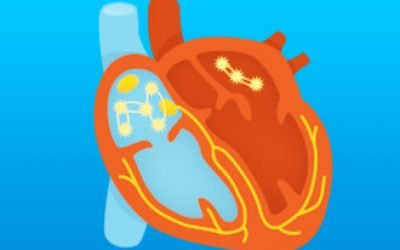 Дієта і харчування при миготливій аритмії серця: корисні продукти