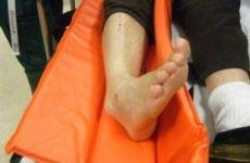 Що робити при вивиху ноги: перша допомога та методи вправляння, лікування травми