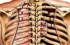 Перелом ребер код за МКХ 10: особливості травми, класифікація, перша допомога