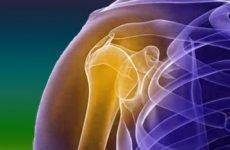 Перелом плечової кістки зі зміщенням: симптоми, види, лікування