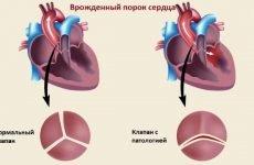 Вроджений порок серця: класифікація, причини і симптоми
