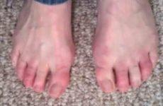 Обмороження пальців ніг: перша допомога і лікування, ускладнення та наслідки