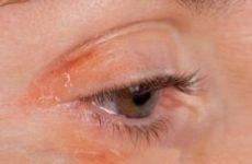 Псоріаз на очах (століттях): причини, симптоми і лікування
