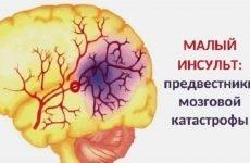 Мікроінсульт: симптоми, ознаки і профілактика в домашніх умовах