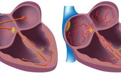 Чим небезпечна аритмія серця: миготлива і синусова