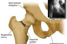 Лікування перелому шийки стегна: сучасні методи та їх особливості