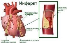 Інфаркт міокарда ЕКГ: розшифровка з фото, ознаки та локалізація