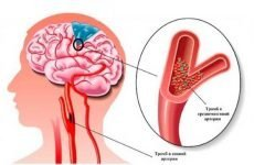Наслідки ішемічного інсульту: прогноз для життя, симптоми і ознаки