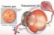 Симптоми і наслідки атеросклерозу сітківки ока