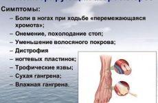 Облітеруючий атеросклероз судин нижніх кінцівок: симптоми і лікування