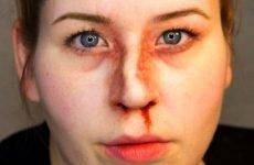 Наслідки при переломі носа: поширені і менш зустрічаються ускладнення