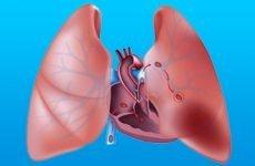 Лікування та класифікація хронічного легеневого серця