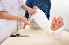 Лікарські засоби при переломах для зрощення кісток і попередження ускладнень