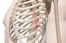 Які ознаки перелому ребер, ускладнення після травми