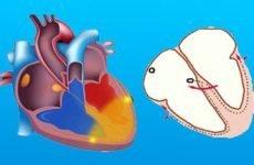 Все про блокадах серця: симптоми, лікування патології 1, 2, 3 ступеня