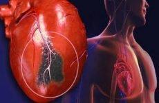 Пульс при інфаркті – який він повинен бути