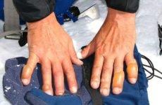 Обмороження рук – причини, симптоми, лікування