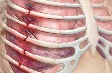 Лікування перелому ребер: правила надання допомоги, традиційні та народні методи терапії