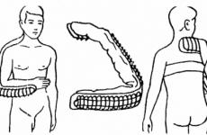 З якою метою проводиться іммобілізація при переломі плеча