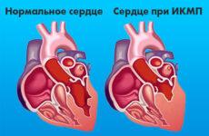 Що таке ішемічна кардіоміопатія і яка причина смерті в її випадку
