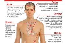 Ступені та групи ризику гіпертонічної хвороби