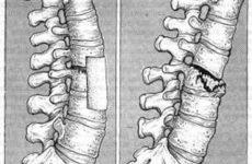 Класифікація переломів хребта: анатомічні особливості і причини травми, види та симптоматичні ознаки, способи діагностики та лікування