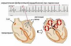Пароксизмальна форма миготливої аритмії: причини, симптоми і лікування