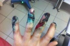 Перелом середнього пальця руки
