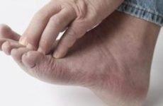 Екзема на ногах: причини і лікування. Як виглядає, як і чим лікувати мокнучу екзему на ногах