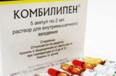 Комбилипен: від чого допомагають уколи і таблетки, як колоти? Призначення, інструкція із застосування, відгуки