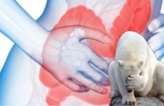 Синдром роздратованого кишечника (СРК, Ведмежа хвороба): симптоми і лікування препаратами і народними засобами, дієта, код за МКХ-10