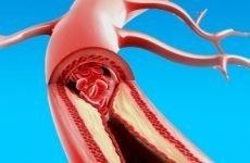 Що таке дифузний і постінфарктний кардіосклероз і як його лікувати