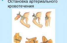 Ознаки артеріальної кровотечі і перша допомога: зупинка крововиливи, алгоритм і правила накладання джгута