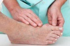 Ортопедична операція на стопі при вальгусной деформації великого пальця