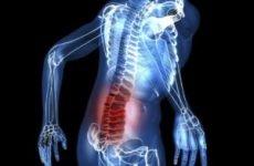 Дорсопатія поперекового відділу хребта: що це таке, лікування крижового відділу