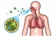 Як передається пневмонія від людини до людини? Заразна вона для оточуючих?