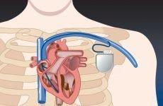 Синдром слабкості і дисфункція синусового вузла