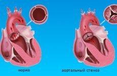Порок серця: симптоми, класифікація і лікування