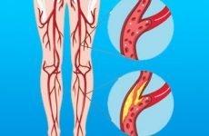 Лікування та ускладнення облітеруючого атеросклерозу нижніх кінцівок