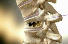 Компресійний перелом грудного відділу хребта: лікування у дітей, ЛФК та наслідки