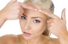 Нагноєна атерома: причини, симптоми і методи лікування