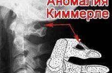 Вся правда про аномалії Киммерли: що це таке, симптоми, лікування, наслідки і тривалість життя