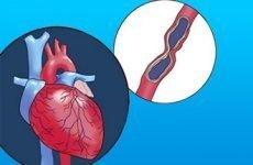 Дієта і харчування при стенокардії
