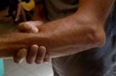 Вивих ліктьового суглоба: симптоми і лікування, перша допомога при травмі ліктя