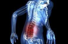Компресійний осколковий перелом хребта: особливості травми, причини, методи діагностики та лікування