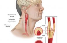 Атеросклероз брахиоцефальных артерій (БЦА): що це таке і як лікувати